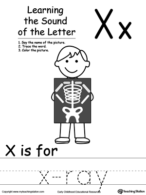 Learning Beginning Letter Sound: X